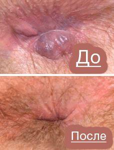 Рис. 3 Большинство пациентов, страдавших геморроем, отмечают, что лазерная операции позволяет полностью избавиться от проблемы