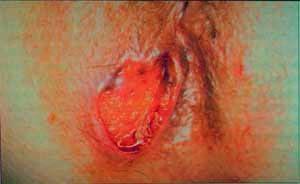 Рис. 1 Трещина заднего прохода может перейти в рак ануса