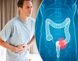 Рис. 2 Симптомы трещины заднего прохода могут быть схожи с симптомами рака ануса