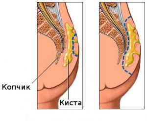 Рис. 1 Воспаление эпителиального копчикового хода не затрагивает кости таза