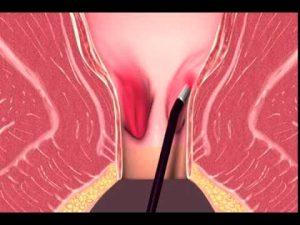 Рис. 2 Лазерная коагуляция - это малотравматичное, безкровное лечение геморроидальных узлов