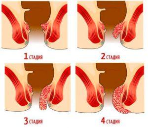 Рис. 3 Геморроидальные узлы на любой стадии подлежат лечению - лазерной вапоризацией