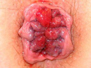 Рис. 2. Геморрой может ущемиться в анусе