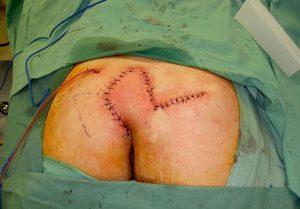 Рис. 2. Операция скальпелем при кисте копчика опасна кровотечением