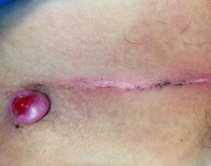 Рис. 2 При инфицировании копчикового хода присоединяются симптомы воспаления и, из отверстий начинает выделяться гной