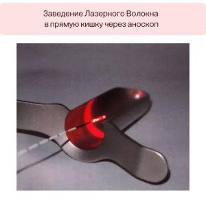Лазерный метод лечения геморроя: описание, эффективность и надежность
