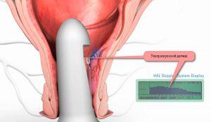 Рис. 2. Дезартеризация геморроя под контролем УЗИ - современный метод лечения