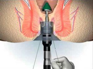 Рис. 3. Удаление геморроя степлером - современный метод лечения