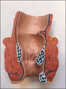 Рис. 1. Лечение хронического геморроя лучше проводить лазером