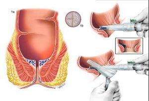 Рис. 2. Лечение геморроидальных узлов латексными кольцами