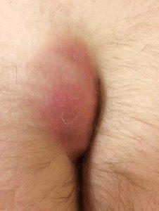 Рис. 2. Пилонидальная киста с абсцессом сопровождается гнойным воспалением