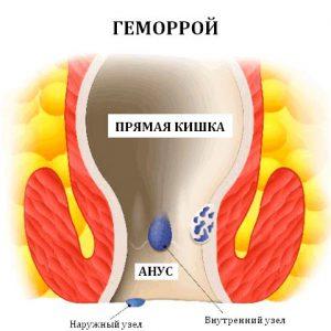 Рис. 1. Геморрой и его лечение