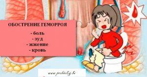 Рис. 2. Лечение симптомов геморроя при обострении