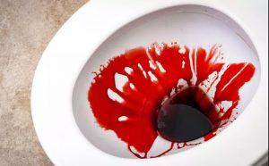 Рис. 1. Кровотечения из прямой кишки могут встречаться как при трещине, так и пригеморрое