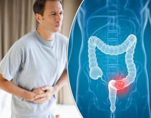 Рис. 3. Рак прямой кишки может походить на трещину и геморрои