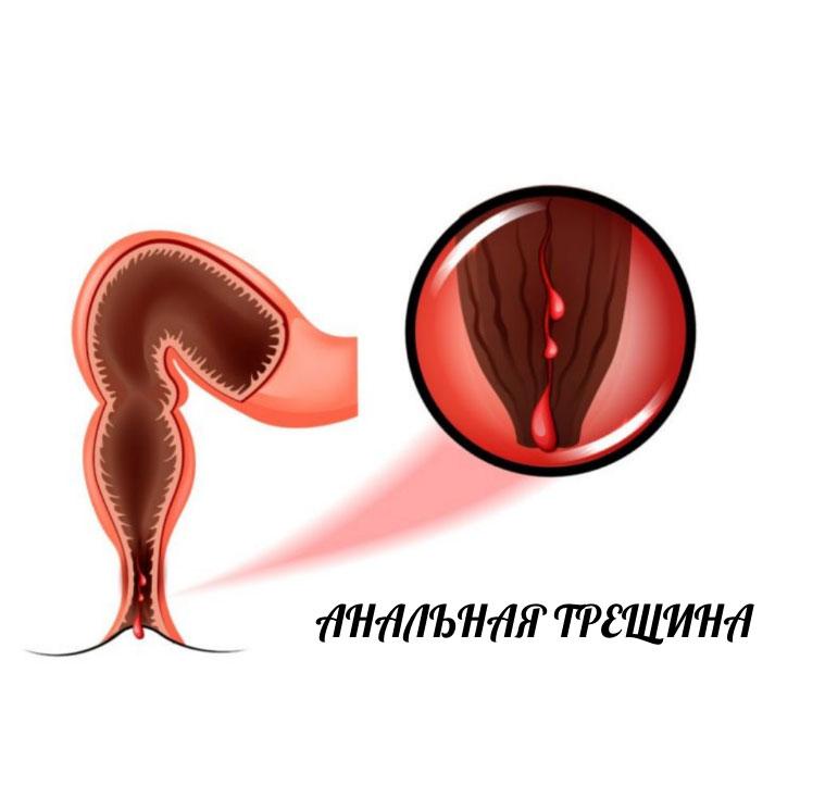 Анальный секс после анальной трещины что