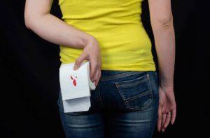 Рис. 1. Трещина заднего прохода - симптомы
