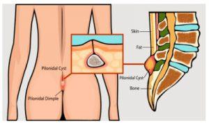 Рис. 3. Лечение кисты копчика лазером