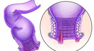 Рис. 1. Трещины заднего прохода - это раны линеинои формы