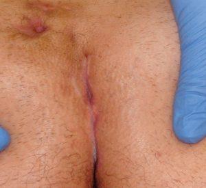 Рис. 1Б. Лечение рецидива ЭКХ на NdYAG-лазере. Фото после 1 сеанса лазерной обработкиpng