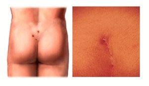 Рис. 1. Рецидив кисты копчика - возврат заболевания после радикальной операции