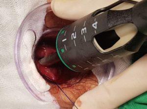 Рис. 2. PPH - операция удаления геморроидальных узлов степлером