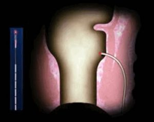 Рис. 4. Лазерная операция при свище прямой кишки без иссечения свищевого хода