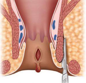 Рис. 1. Операция при трещине заднего прохода - закрытая боковая сфинктеротомия