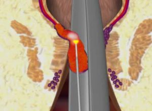 Рис. 2. Метод лазерного лечения геморроя