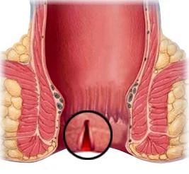 Рис. 2. При трещине заднего прохода часто требуется операция