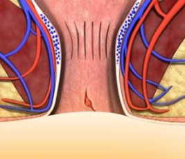 Рис. 1. Операция иссечения трещины заднего прохода проводится в хронической стадии заболевания