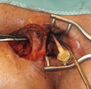 Рис. 4. Операция при свище прямой кишки с применением аллотрансплантата.